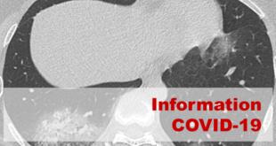 Le scanner servant à évaluer d'urgence les AVC pourrait diagnostiquer la Covid-19