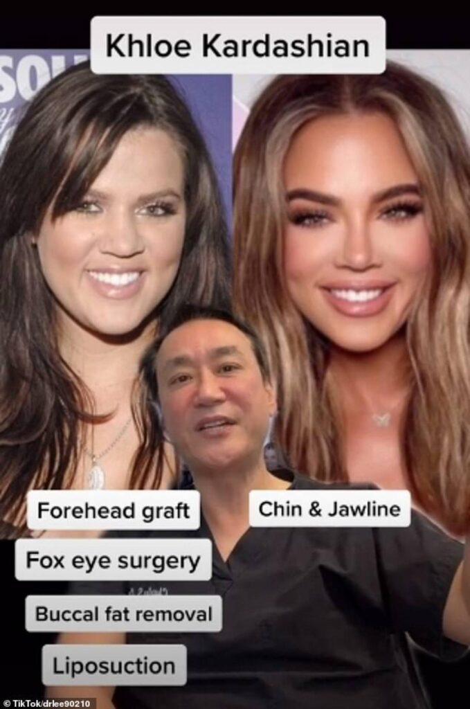 khloé kardashian chirurgie tik tok