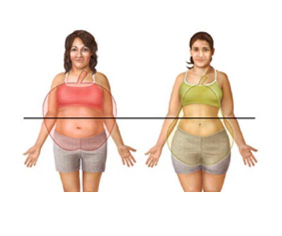 graisse fesses et ventre