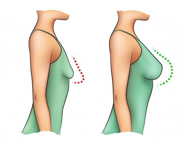 avantages augmentation mammaire