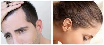 diagnostic perte cheveux