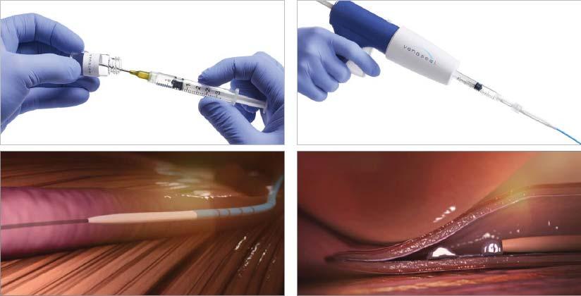 traitement varices