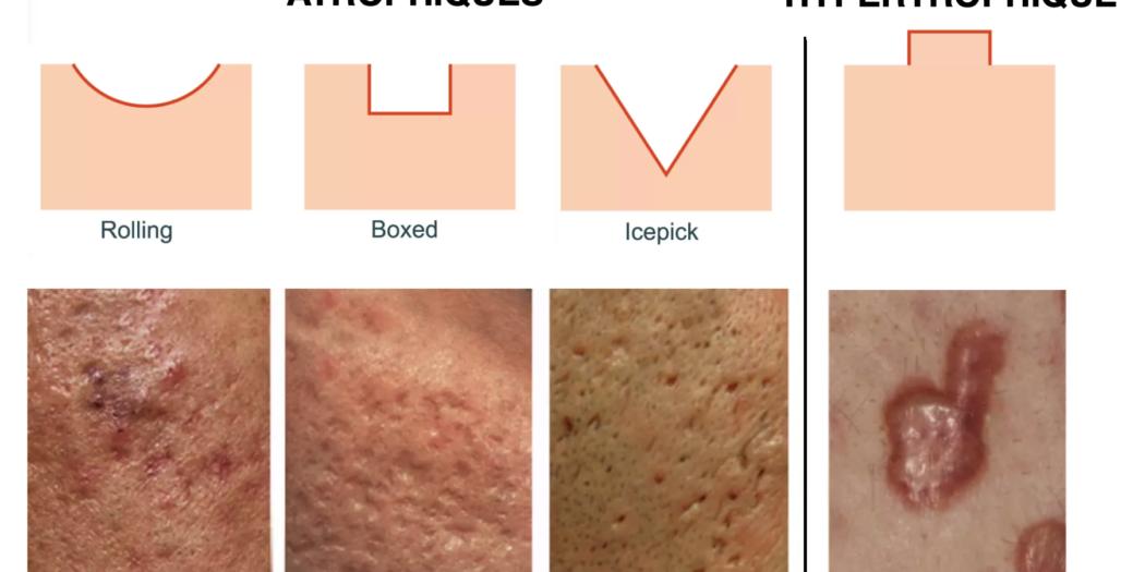 types cicatrices