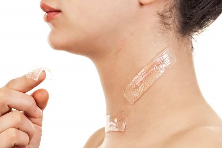 traitement cicatrices