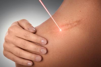 traitement cicatrices laser